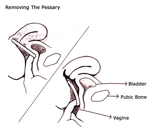 Removing the Pessary